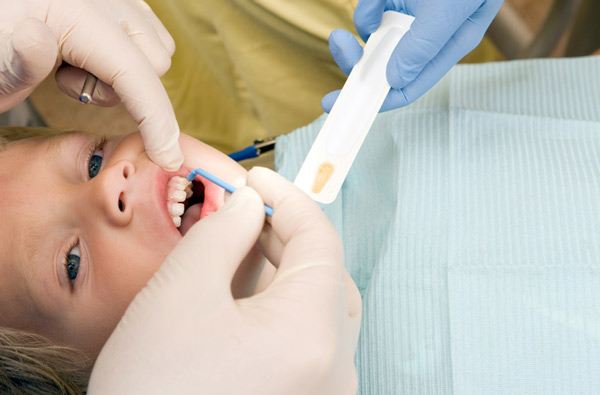 Young boy receiving fluoride treatment at HomeTown Dental